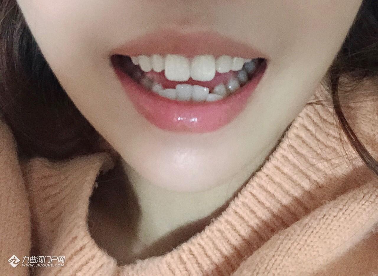 我的門牙太長啦!想曉得門牙可以磨短嗎?